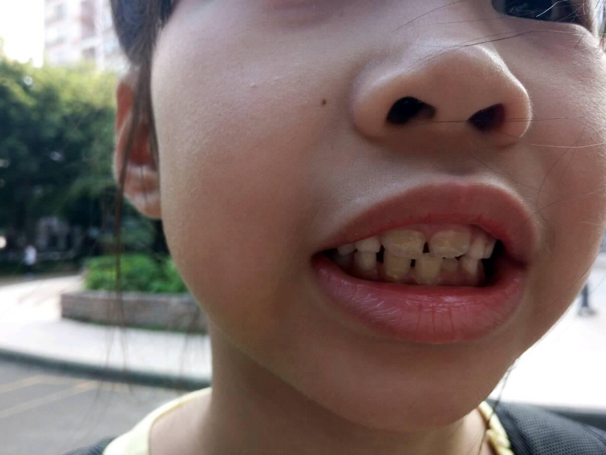 一起努力,帮助小朋友拥有健康的牙齿